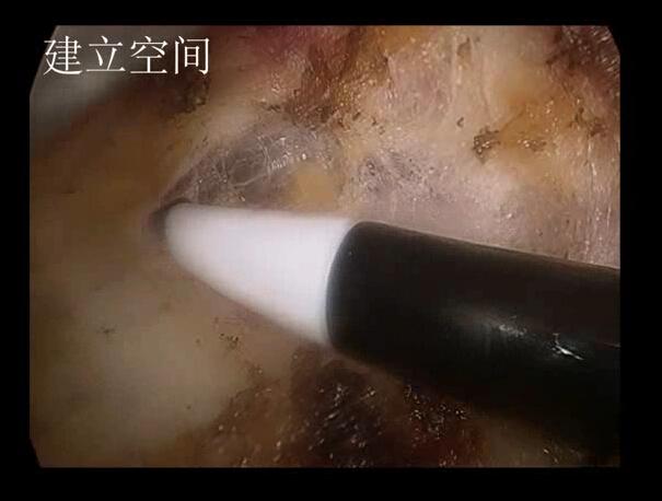 组胚红蓝铅笔绘图甲状腺